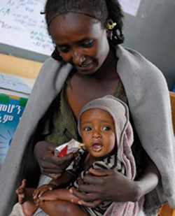 Child malnutrition in Tigray, northern Ethiopia is alarming